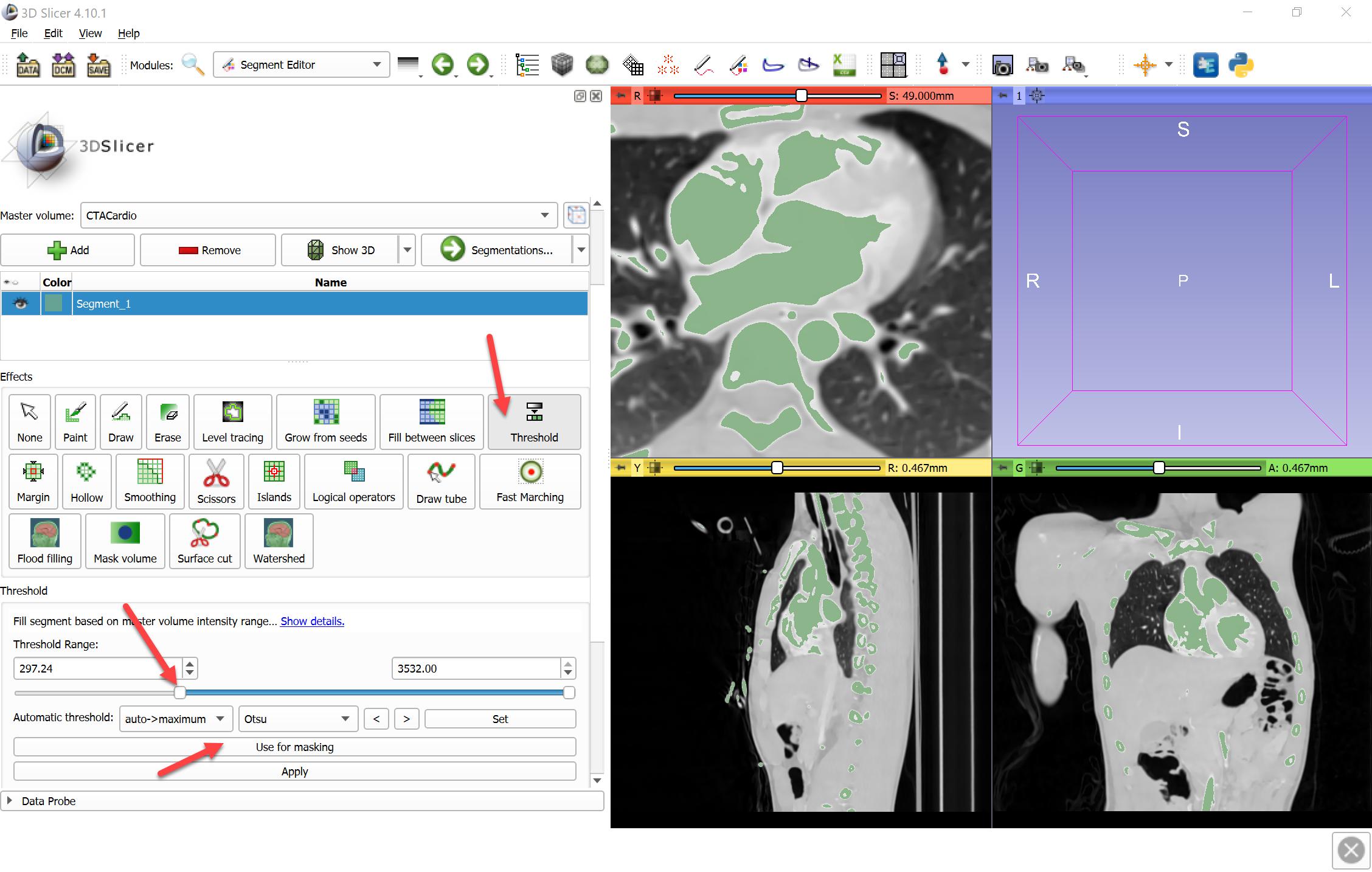 Overview | 3D Slicer segmentation recipes